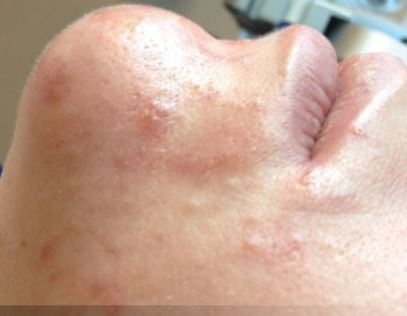 After Hydrafacial MD